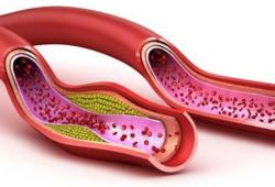 Circulation:载脂蛋白B与冠状动脉疾病和外周动脉疾病风险的相关性