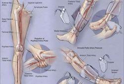 Diabetologia:踝肱指数可以提示2型糖尿病患者微血管和大血管并发症的发展和预后