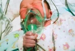Pediatrics:早产儿拔管后的吸氧方式对比