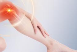 The Lancet Rheumatology:与急性膝关节损伤2年后结局相关的临床和分子特征:来自肯尼迪膝关节损伤队列的纵向研究(KICK)结果