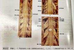 脊髓大体形态及血管结构