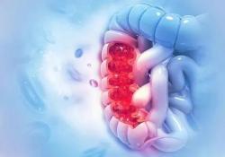 "<font color=""red"">IBD</font>:低剂量甲氨蝶呤治疗炎症性肠病患者不影响精液和精子的质量"