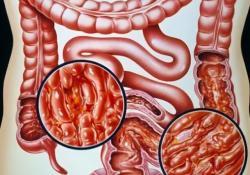 "<font color=""red"">IBD</font>: 饮酒会增加微观结肠炎的发病风险"