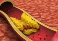 "Lancet:家族性高<font color=""red"">胆固醇</font>血症的全球患病率和控制情况"