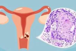 J Clin Oncol:3期  图像引导的调化放疗 vs 3D适形放疗用于宫颈癌术后患者的晚期毒副作用