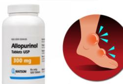 """EHJ:""""两大金刚""""别嘌呤醇与苯溴马隆在痛风患者中的相关心血管风险"""