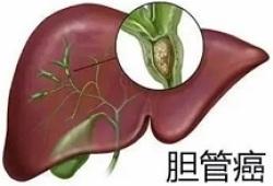 TAMO:阿帕替尼在难治性转移性胆道癌中的疗效和安全性