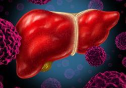 "ClinGastroenterologyH: HBeAg 对慢性<font color=""red"">乙型</font><font color=""red"">肝炎</font>患者口服抗<font color=""red"">病毒</font>药物治疗期间肝细胞癌风险的影响"