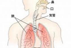 Stroke:卒中后肺炎的临床意义