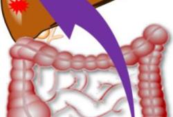J Clin Oncol:肝切除术后进行mFOLFOX6方案辅助化疗可显著延长仅肝转移的结直肠癌患者的无病生存期!