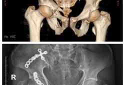 CJASN:蛋白尿、肾小球滤过率(GFR)快速下降与髋关节和骨盆骨折风险的相关性