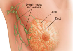 "JAMA子刊:值得关注——提高乳房<font color=""red"">X</font>光检查有助于更多患者早期筛查乳腺癌"