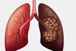 Lancet子刊& WCLC:单次胸部CT筛查,就能降低1/3肺癌死亡率!