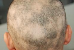 JADV:小儿斑秃合并症研究