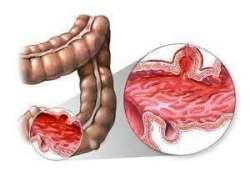 JGH: 环孢素A与英夫利昔单抗治疗激素难治性急性重症溃疡性结肠炎疗效比较