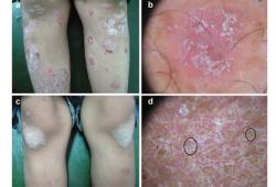 一文了解红色毛发糠疹与斑块型银屑病的皮肤镜鉴别