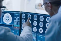 Neurology: 脑淀粉样血管病变相关炎症的进展和预后如何?