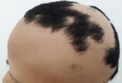 斑秃白发现象的皮肤镜镜特征