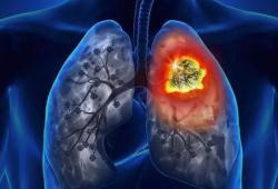 J Immunother Cancer:接受免疫检查点抑制剂治疗的癌症患者患肺结核的风险比普通人高 8 倍!
