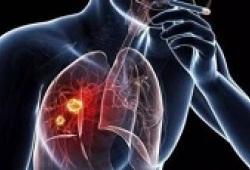 Lancet:切除的IB–IIIA期NSCLC患者辅助化疗后应用阿特珠单抗可额外获益