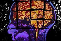 阿尔兹海默病新突破!肝脏中的淀粉样蛋白会通过血液损害大脑