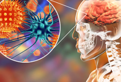 "JAMA Neuro:""万金油""免疫治疗真的万能!来看看NMDAR抗体脑炎IVIG的疗效"
