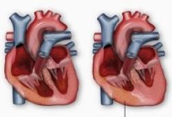 Circulation:长期坚持运动训练可逆转左室肥厚患者的异常心肌僵硬