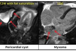 Eur Heart J:心血管磁共振成像检查在疑似心脏肿瘤患者中的价值