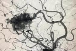 JAMA Dermatol:西罗莫司治疗儿童血管畸形的效果