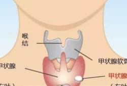 Thyroid:激光消融与射频消融治疗良性无功能性甲状腺结节比较