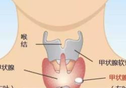 "Thyroid:激光消融与射频消融治疗<font color=""red"">良性</font>无功能性甲状腺结节比较"