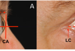 Thyroid:Graves眼病患者使用前列腺素F2-α滴眼液(比马前列素)