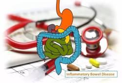 JCC:炎症性肠病患者患神经退行性疾病的风险分析