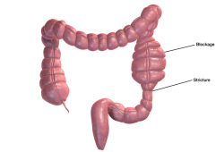 JCC:间充质干细胞治疗克罗恩病肠道狭窄的疗效分析