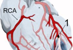JACC:振奋人心——迟发型心肌梗死患者行PCI术仍能明显获益!