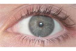 中国角膜屈光手术围手术期干眼诊疗专家共识(2021年)