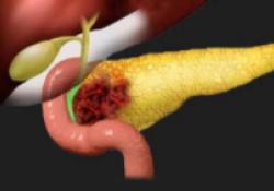 Front Oncol:可切除胰腺癌伴有淋巴结转移或R1切除使用辅助化疗续贯放化疗的疗效评估