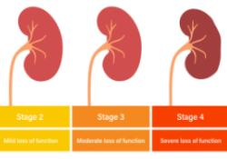 """2型糖尿病患者<font color=""""red"""">的</font>肾脏<font color=""""red"""">功能</font><font color=""""red"""">检测</font>远不达标!"""
