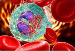 ClinGastroenterologyH:STAT6变异与接受长期质子泵抑制剂治疗的患者的嗜酸性粒细胞性食管炎复发有关