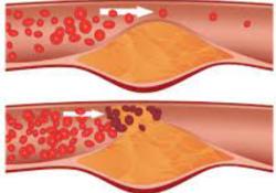 "EHJ:临床大发现:降脂还只知道LDL-C?残余胆固醇才是""罪魁祸首""!"