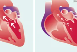 "EHJ:肥胖真的很""伤心"",或能改变扩张型心肌病的能量表型"
