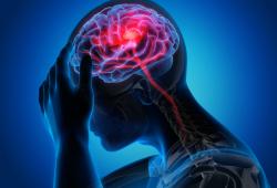 Neurology : 前循环脑梗前,若存在运动障碍,预后如何?