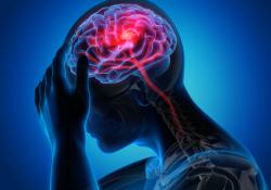 "Neurology : 前循环<font color=""red"">脑</font><font color=""red"">梗</font>前,若存在运动障碍,预后如何?"