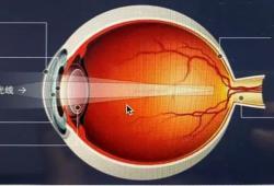 白内障,是我国致盲率最高的眼部疾病!如何预防?怎么治疗?