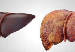 "JHEPATOLOGY:利福昔明可以减少肝硬化和肝<font color=""red"">性</font>脑病患者的肠道源<font color=""red"">性</font>炎症和粘蛋白降解程度"