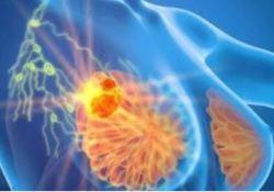 "Clin Cancer Res:尼<font color=""red"">拉</font><font color=""red"">帕</font><font color=""red"">利</font>治疗携带BRCA1/2胚系突变的晚期乳腺癌的疗效"