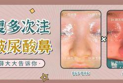 内入路修复多次注射玻尿酸导致的宽鼻