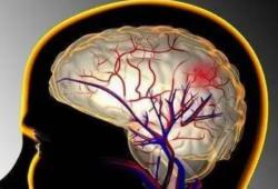 Lancet Neurol:当房颤遇上自发性颅内出血,患者还能不能口服抗凝治疗?