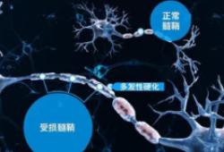 Neurology:Occrelizumab在不同类型的多发性硬化症患者中的安全性