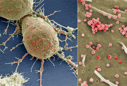 Int J Radiat Oncol Biol Phys:短程二维放射治疗在发展中国家食管癌姑息治疗中的应用
